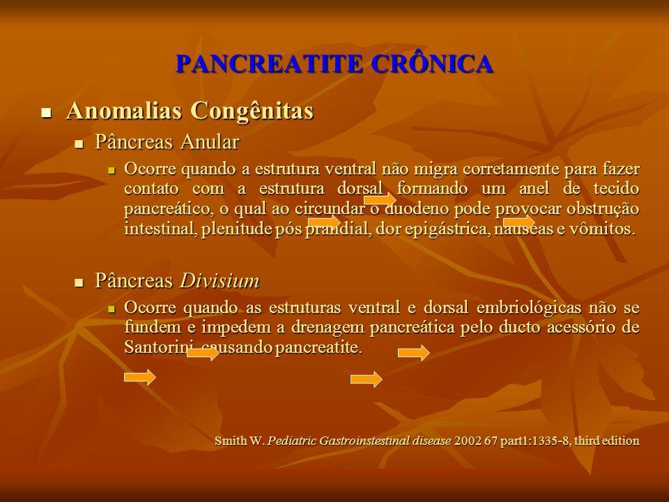 PANCREATITE CRÔNICA Anomalias Congênitas Pâncreas Anular