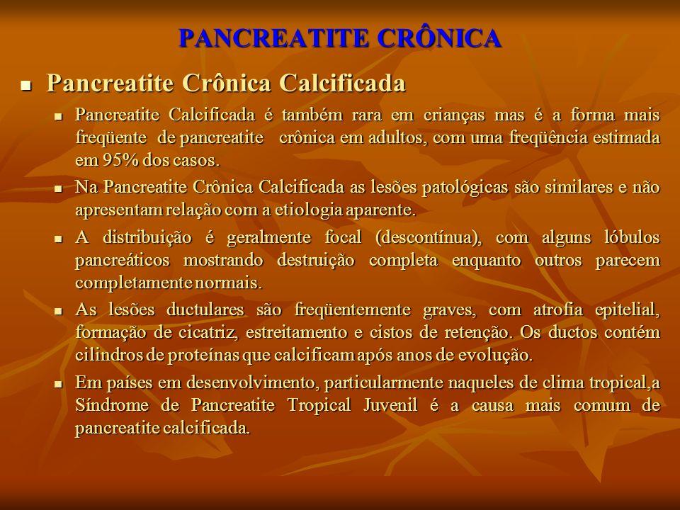 Pancreatite Crônica Calcificada