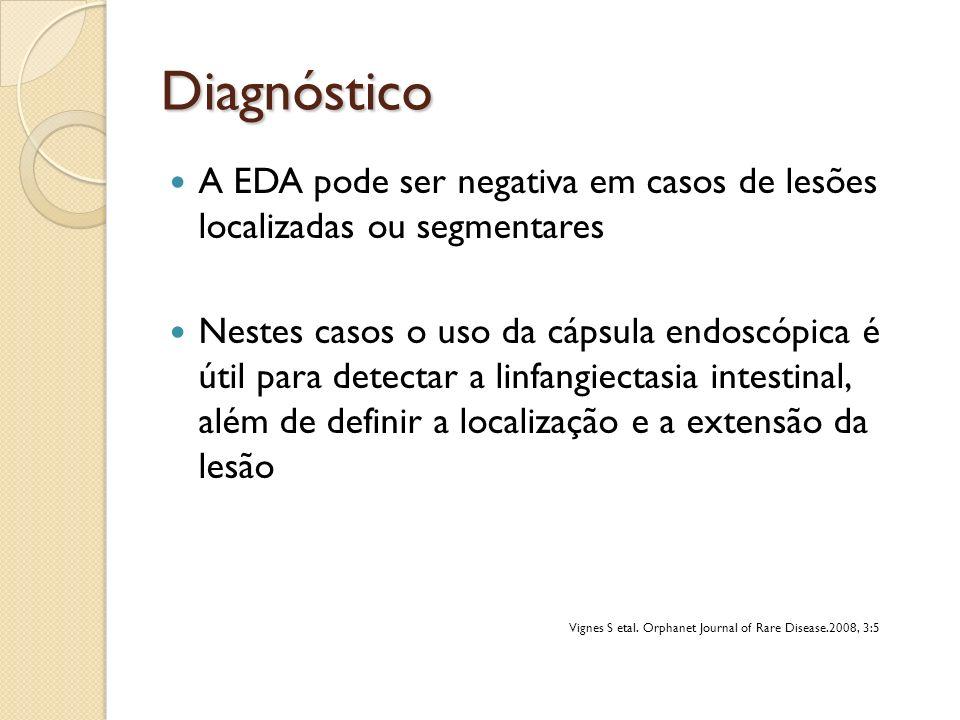 Diagnóstico A EDA pode ser negativa em casos de lesões localizadas ou segmentares.