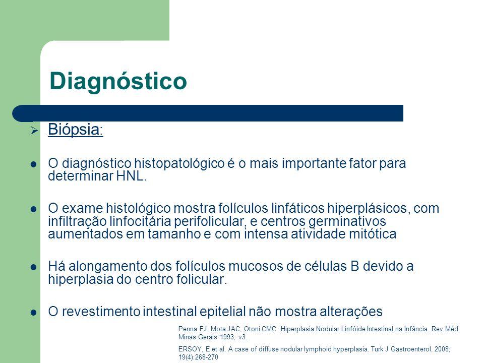 DiagnósticoBiópsia: O diagnóstico histopatológico é o mais importante fator para determinar HNL.