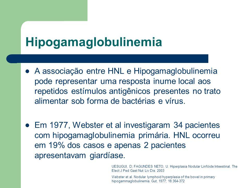 Hipogamaglobulinemia