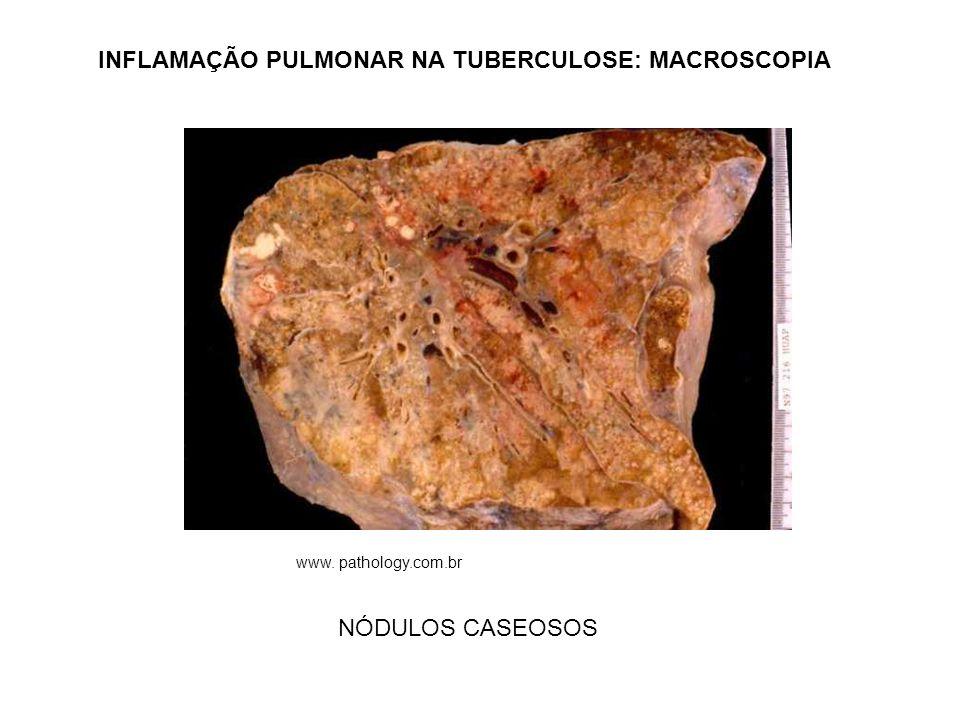 INFLAMAÇÃO PULMONAR NA TUBERCULOSE: MACROSCOPIA