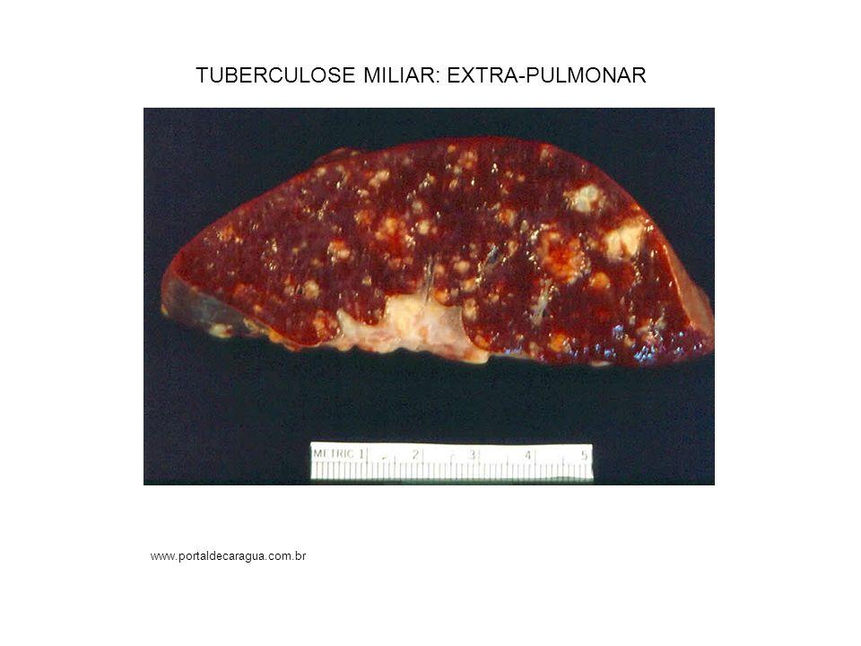 TUBERCULOSE MILIAR: EXTRA-PULMONAR