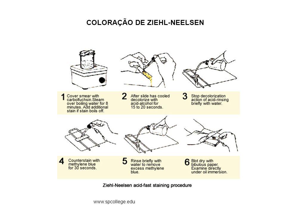 COLORAÇÃO DE ZIEHL-NEELSEN