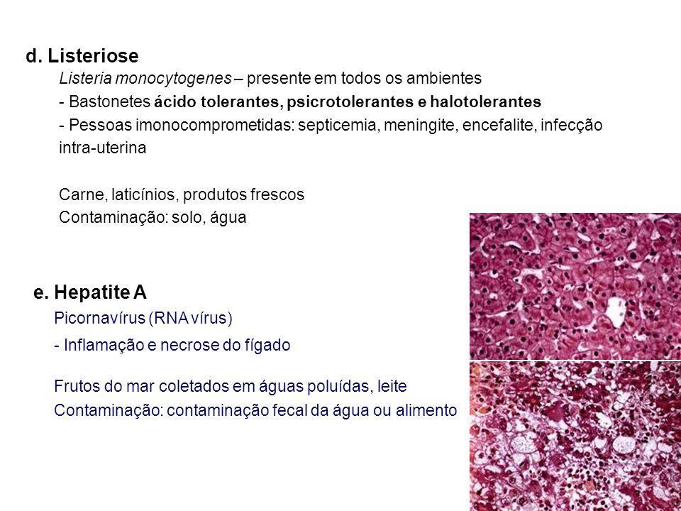 d. Listeriose e. Hepatite A