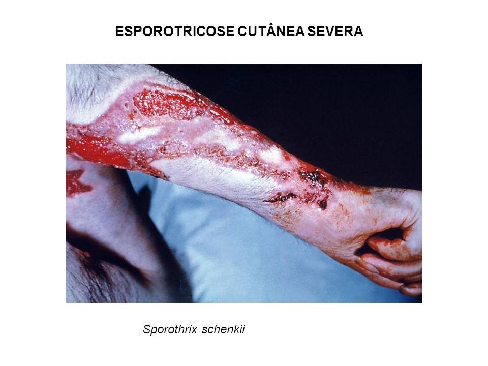 ESPOROTRICOSE CUTÂNEA SEVERA