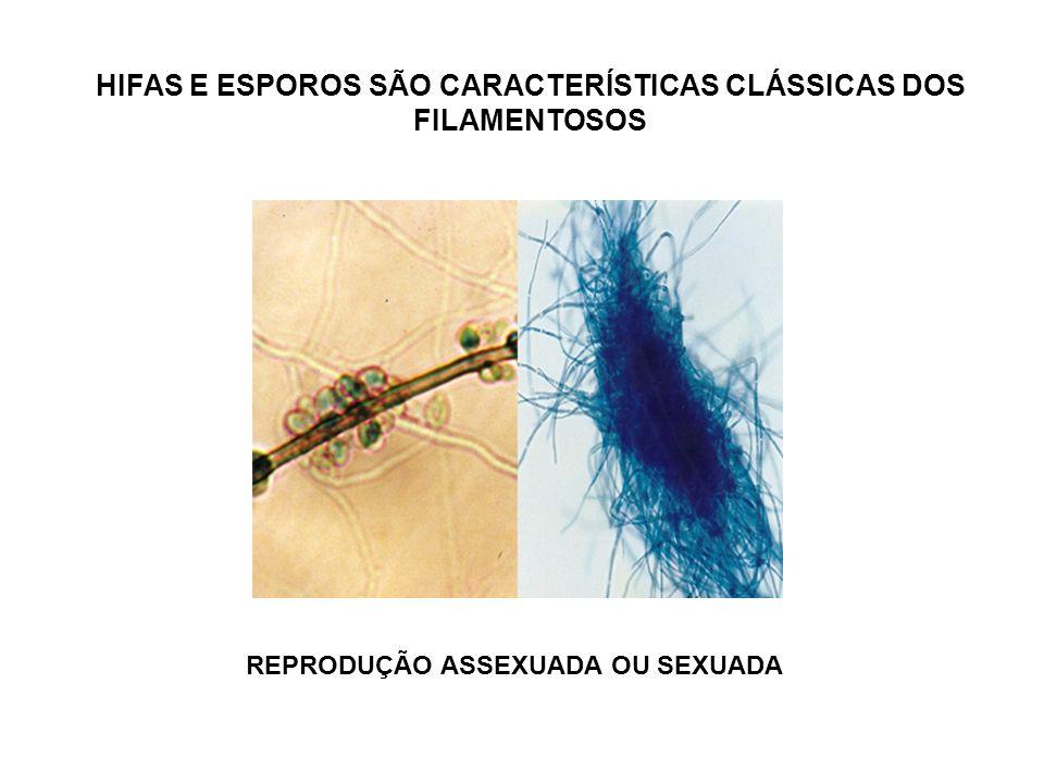 HIFAS E ESPOROS SÃO CARACTERÍSTICAS CLÁSSICAS DOS