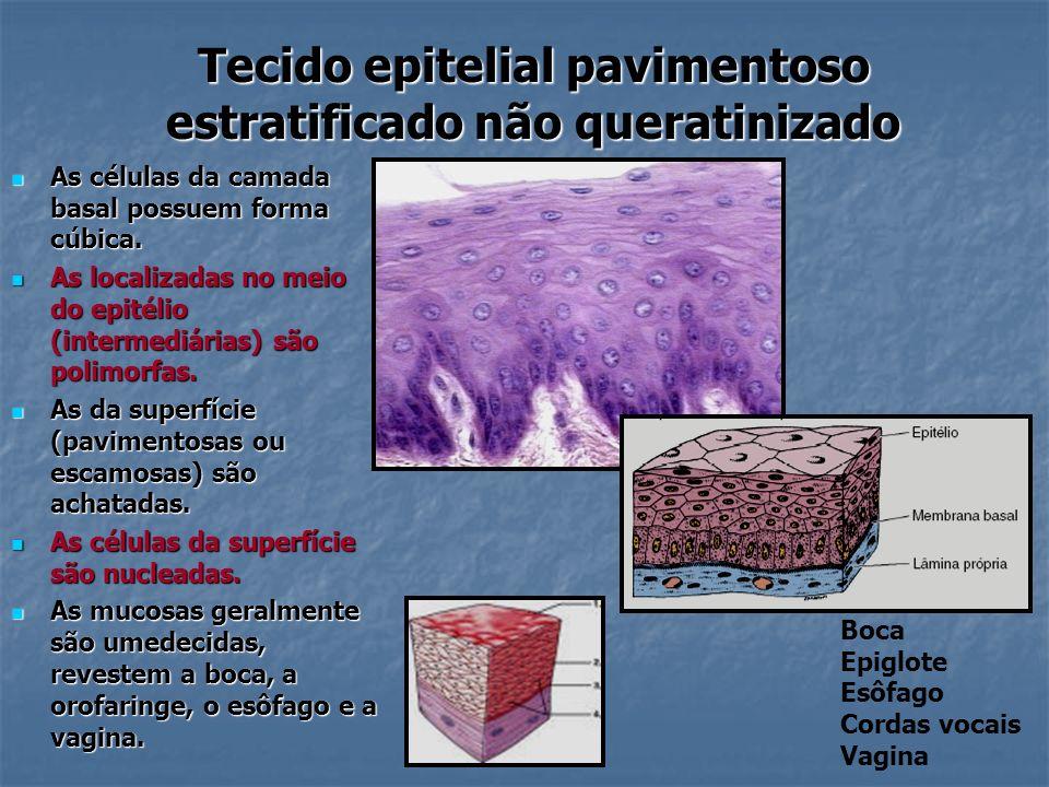 Tecido epitelial pavimentoso estratificado não queratinizado