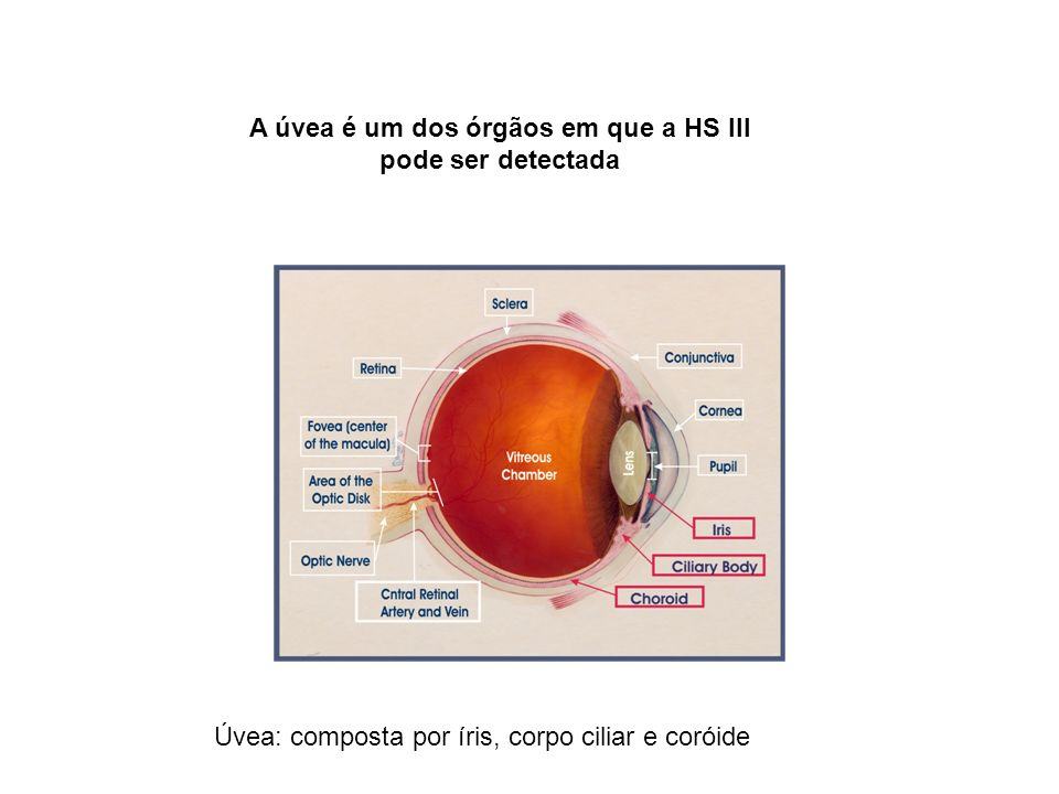 A úvea é um dos órgãos em que a HS III