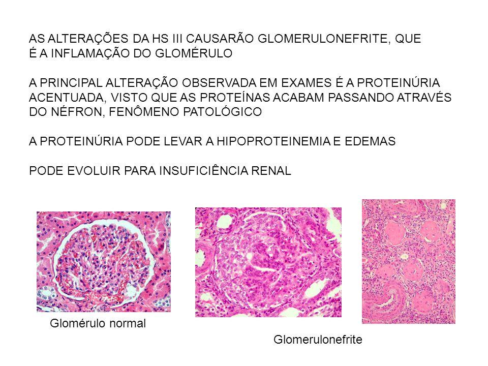 AS ALTERAÇÕES DA HS III CAUSARÃO GLOMERULONEFRITE, QUE