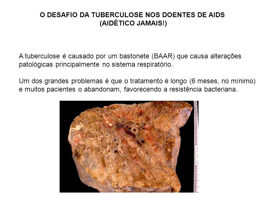O DESAFIO DA TUBERCULOSE NOS DOENTES DE AIDS