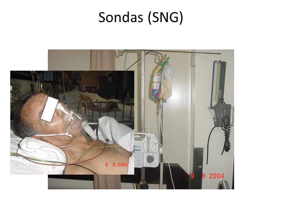 Sondas (SNG)