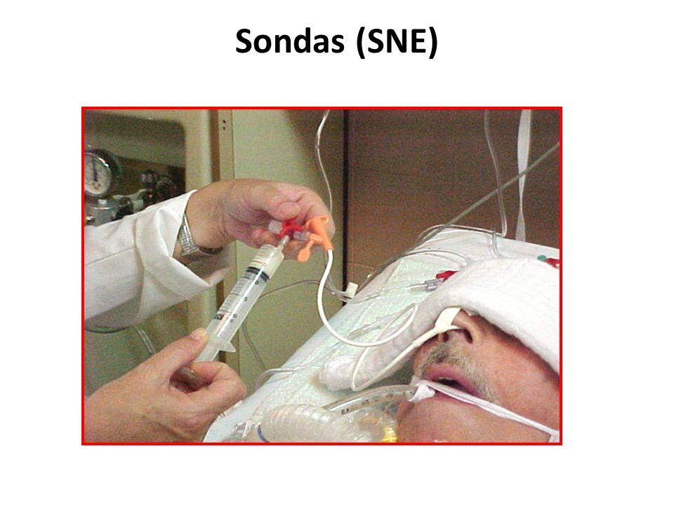 Sondas (SNE)