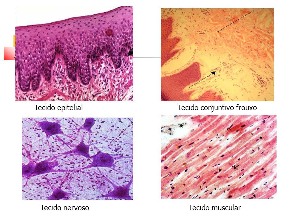 Tecido epitelial Tecido conjuntivo frouxo Tecido nervoso Tecido muscular