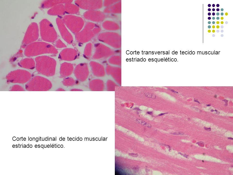 Corte transversal de tecido muscular