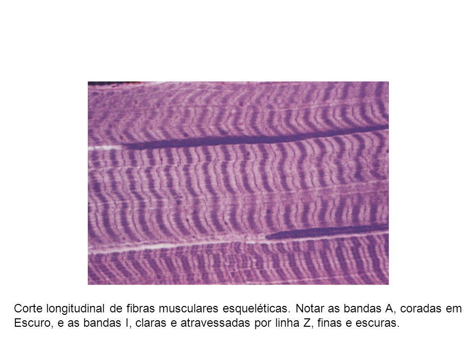 Corte longitudinal de fibras musculares esqueléticas