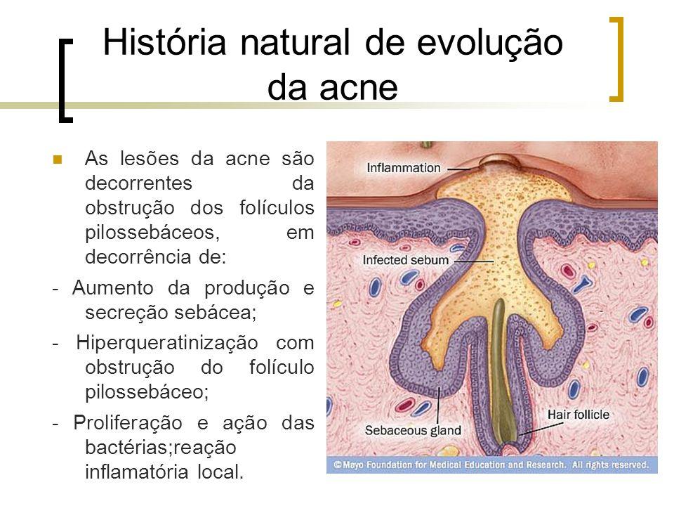 História natural de evolução da acne