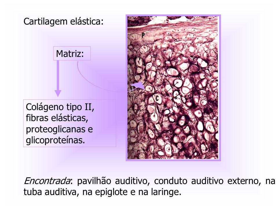 Cartilagem elástica: Matriz: Colágeno tipo II, fibras elásticas, proteoglicanas e glicoproteínas.