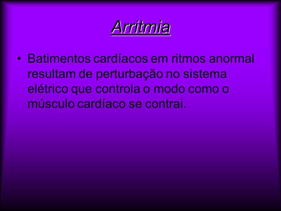 ArritmiaBatimentos cardíacos em ritmos anormal resultam de perturbação no sistema elétrico que controla o modo como o músculo cardíaco se contrai.