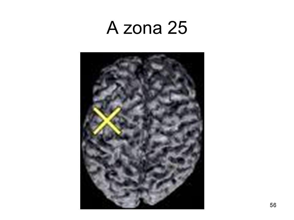 A zona 25