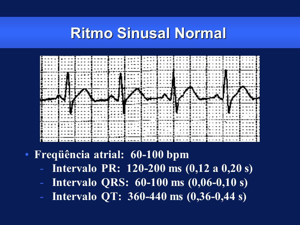 Ritmo Sinusal Normal Freqüência atrial: 60-100 bpm
