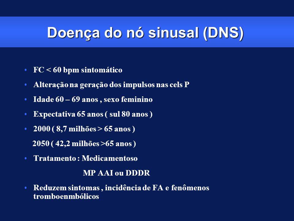 Doença do nó sinusal (DNS)