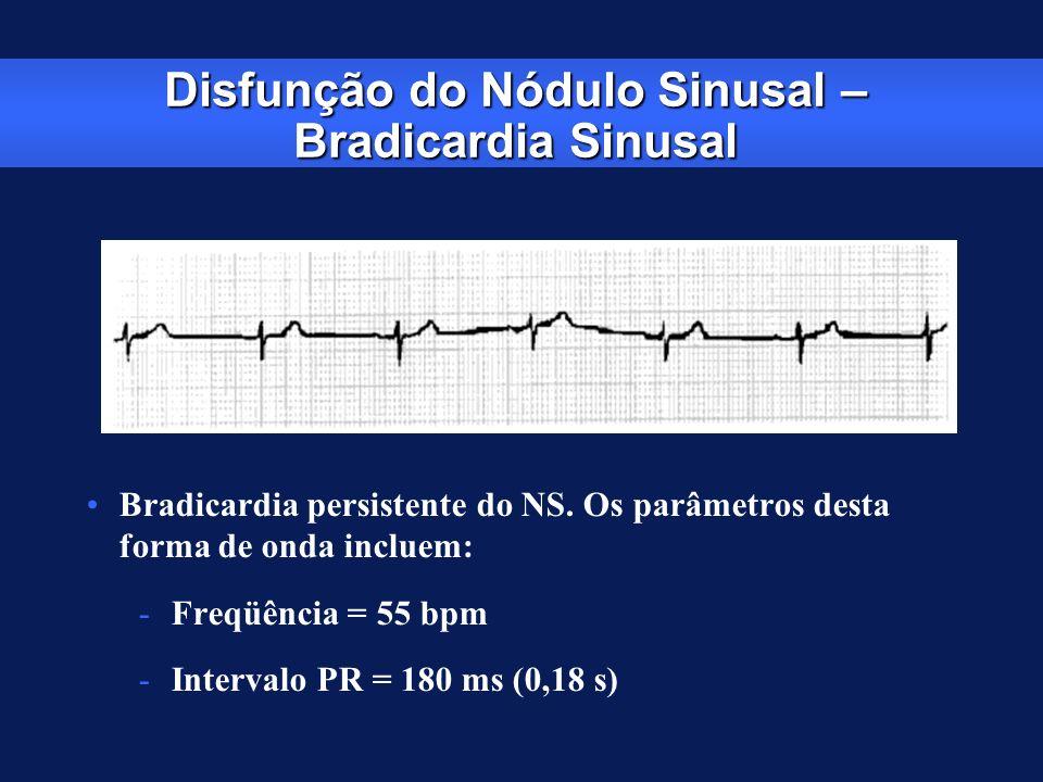 Disfunção do Nódulo Sinusal – Bradicardia Sinusal