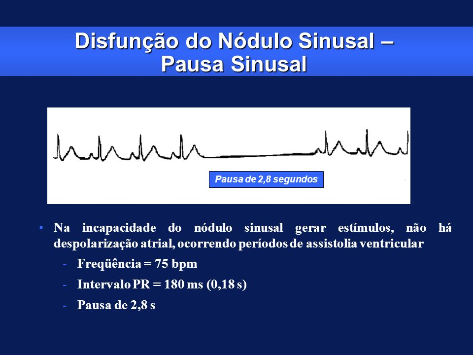 Disfunção do Nódulo Sinusal – Pausa Sinusal