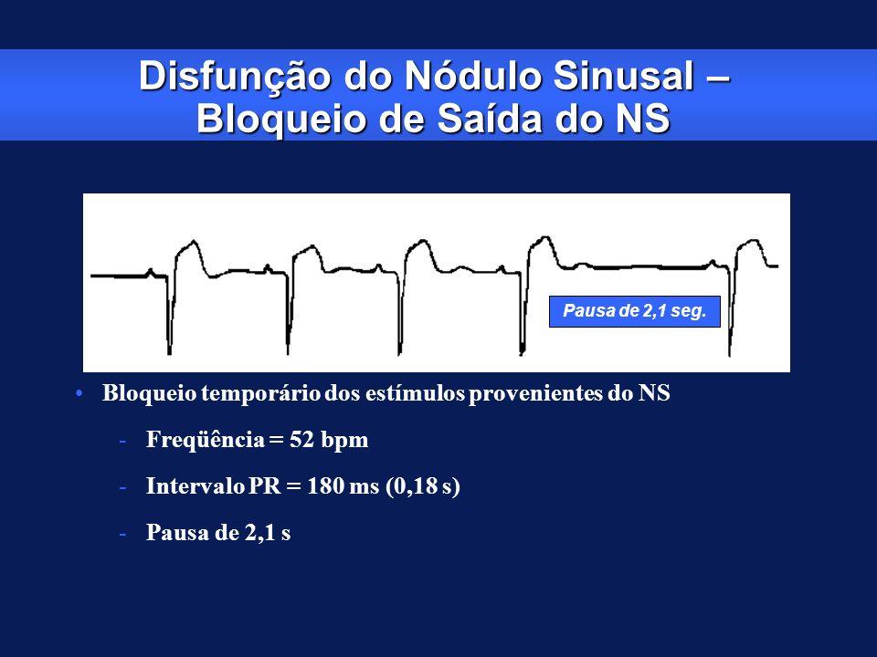 Disfunção do Nódulo Sinusal – Bloqueio de Saída do NS