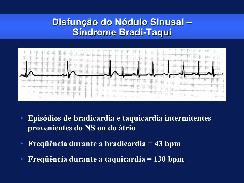 Disfunção do Nódulo Sinusal – Síndrome Bradi-Taqui