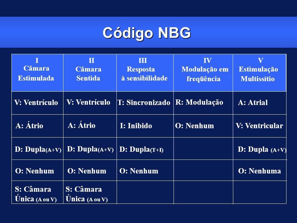 Código NBG V: Ventrículo T: Sincronizado R: Modulação A: Atrial