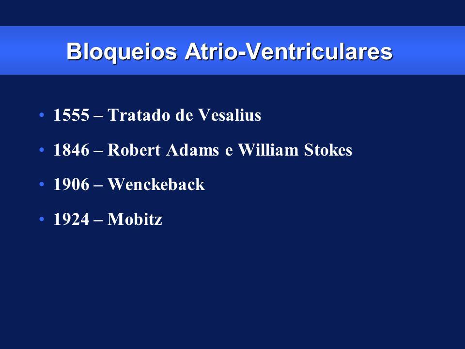 Bloqueios Atrio-Ventriculares
