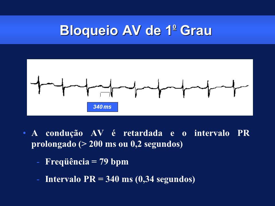 Bloqueio AV de 10 Grau 340 ms. A condução AV é retardada e o intervalo PR prolongado (> 200 ms ou 0,2 segundos)