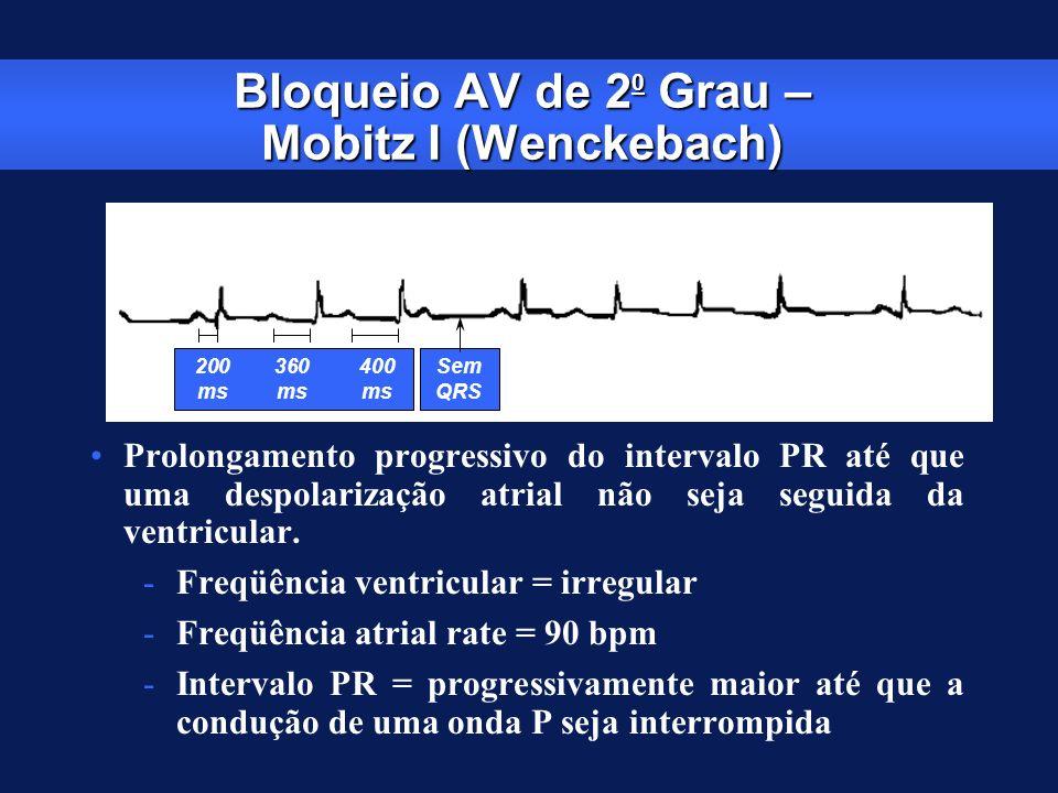 Bloqueio AV de 20 Grau – Mobitz I (Wenckebach)