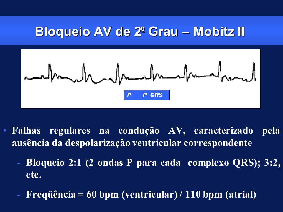 Bloqueio AV de 20 Grau – Mobitz II