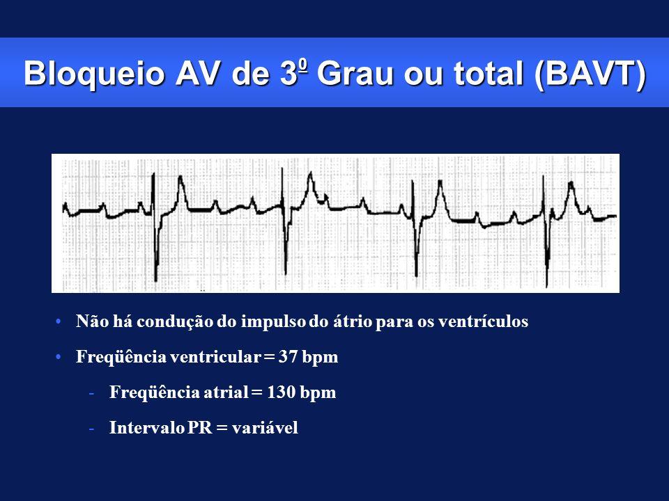 Bloqueio AV de 30 Grau ou total (BAVT)