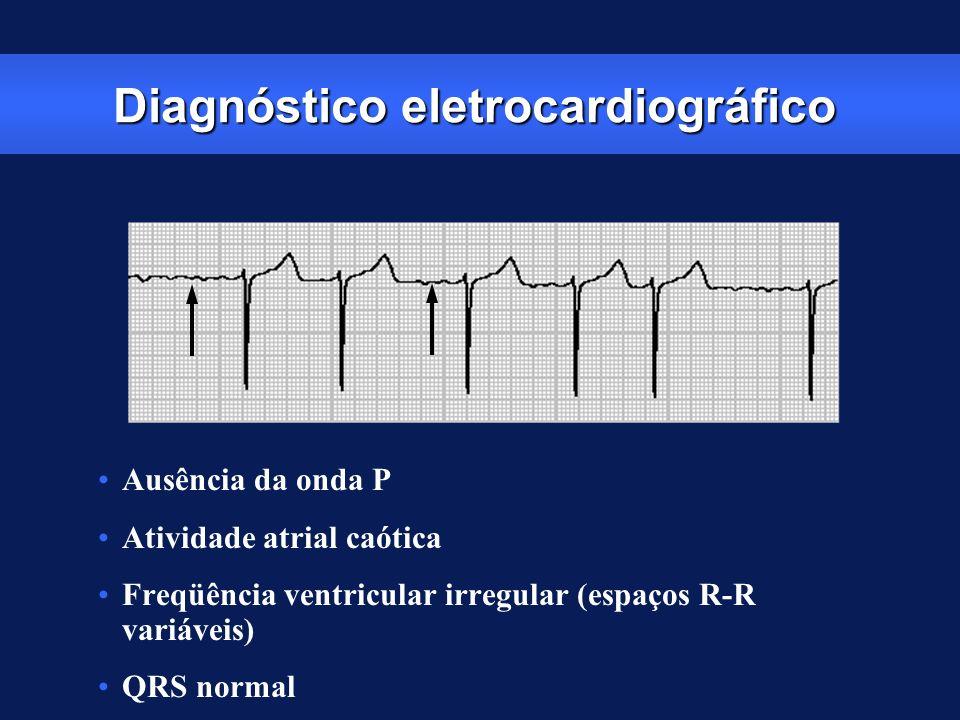 Diagnóstico eletrocardiográfico
