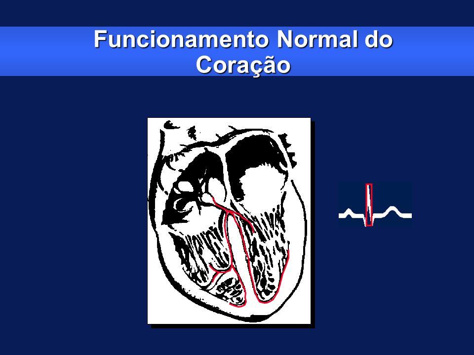Funcionamento Normal do Coração