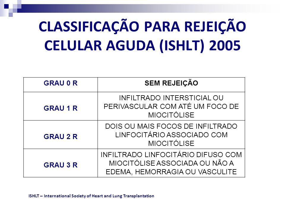 CLASSIFICAÇÃO PARA REJEIÇÃO CELULAR AGUDA (ISHLT) 2005