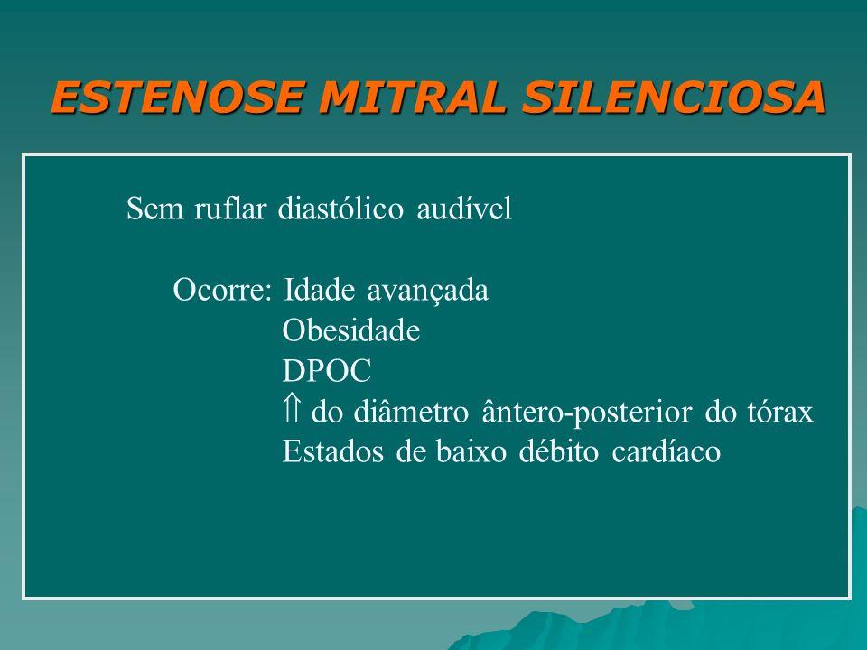 ESTENOSE MITRAL SILENCIOSA