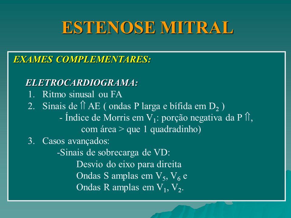 ESTENOSE MITRAL EXAMES COMPLEMENTARES: ELETROCARDIOGRAMA: