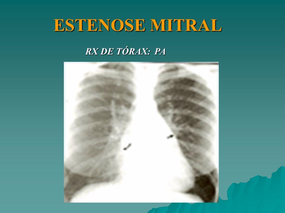 ESTENOSE MITRAL RX DE TÓRAX: PA