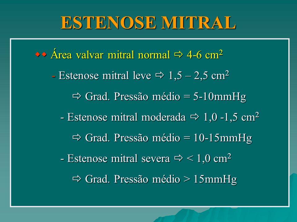 ESTENOSE MITRAL  Área valvar mitral normal  4-6 cm2