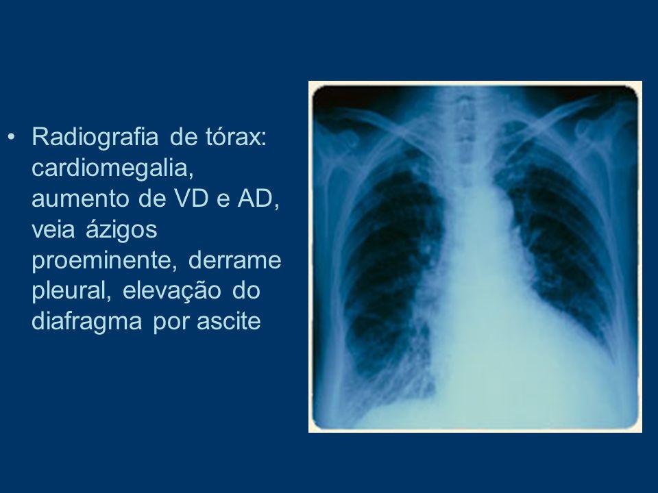 Radiografia de tórax: cardiomegalia, aumento de VD e AD, veia ázigos proeminente, derrame pleural, elevação do diafragma por ascite