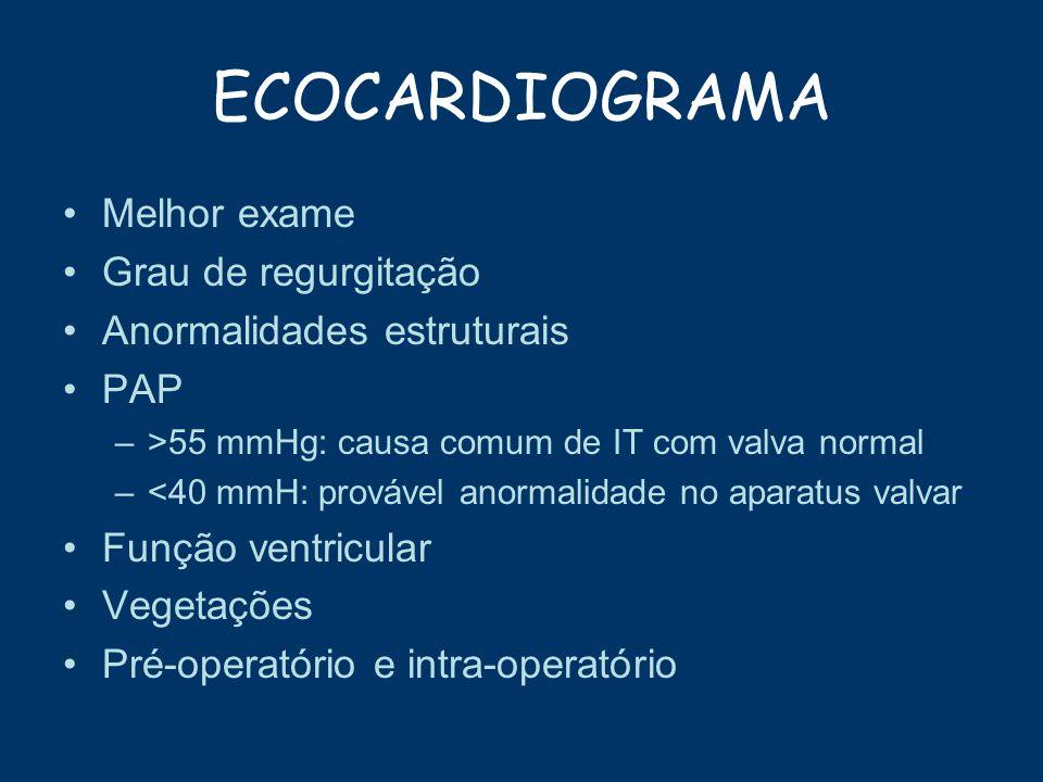 ECOCARDIOGRAMA Melhor exame Grau de regurgitação