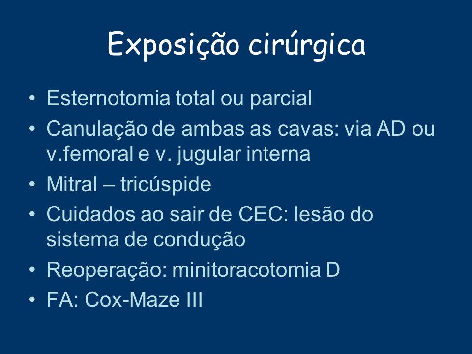 Exposição cirúrgica Esternotomia total ou parcial