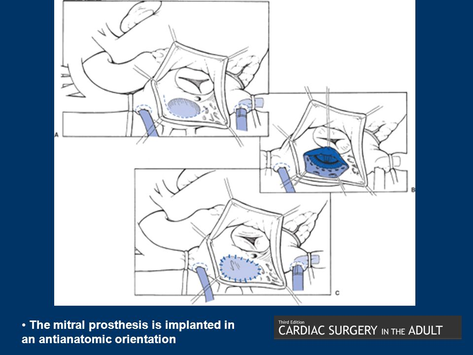 The mitral prosthesis is implanted in an antianatomic orientation