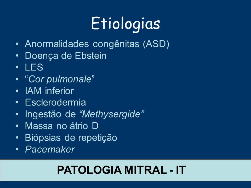 Etiologias PATOLOGIA MITRAL - IT Anormalidades congênitas (ASD)