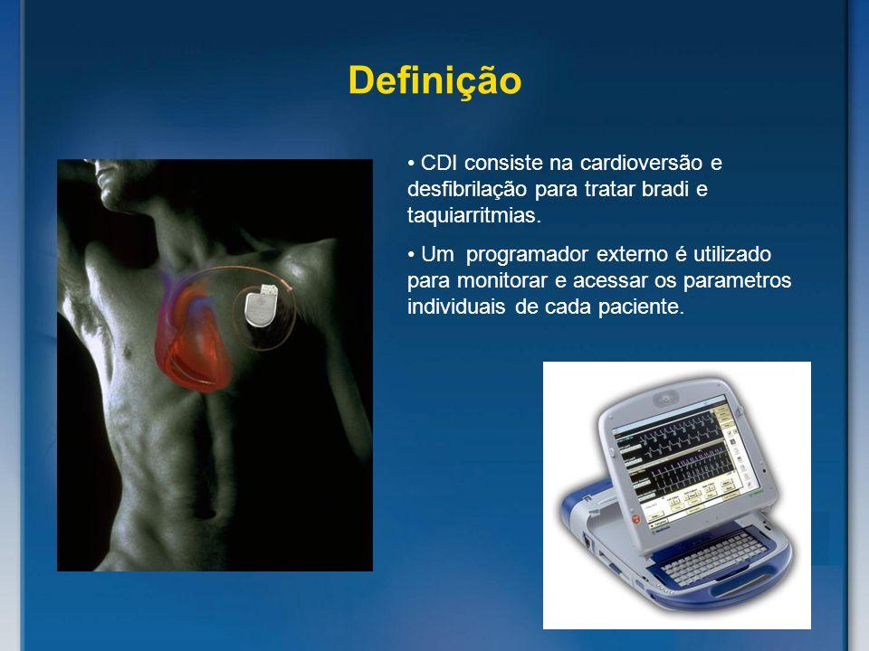 Definição CDI consiste na cardioversão e desfibrilação para tratar bradi e taquiarritmias.