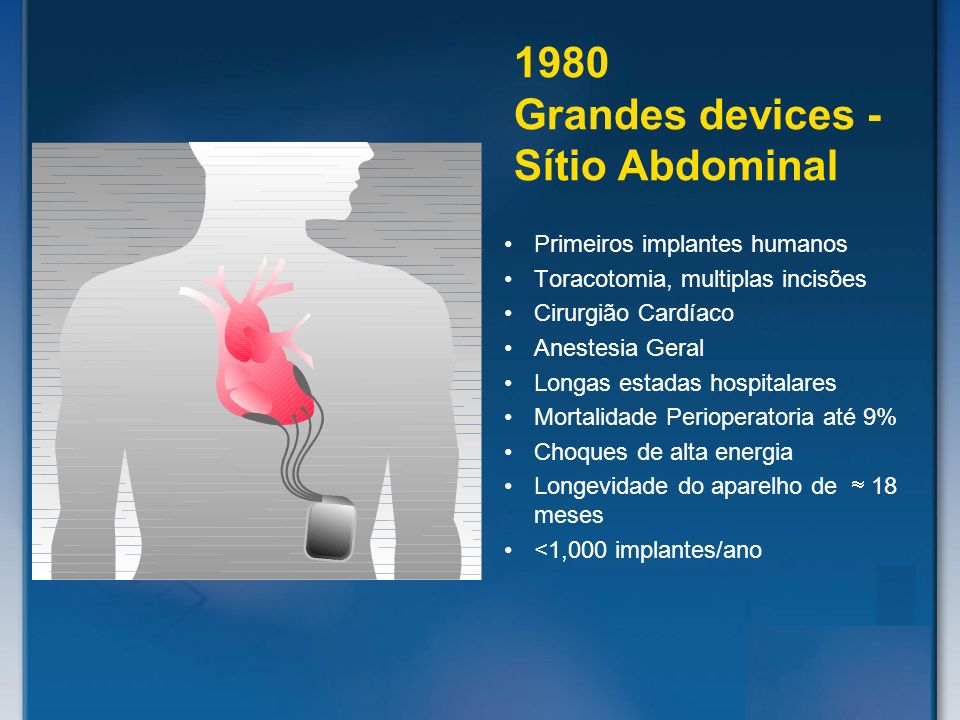 1980 Grandes devices - Sítio Abdominal